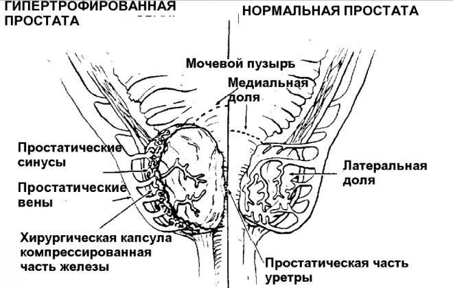 Гипертрофия предстательной железы у мужчин