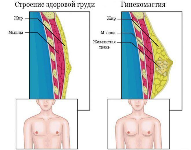 Как появляется гинекомастия