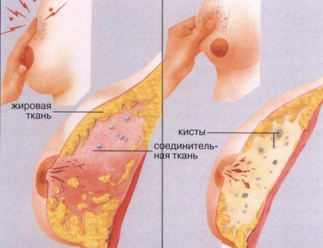 Киста, как вид узловой мастопатии