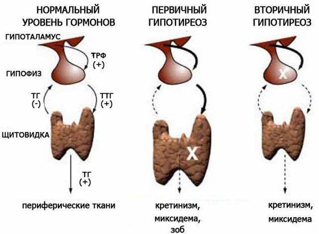 Классификация гипотиреоза и причины