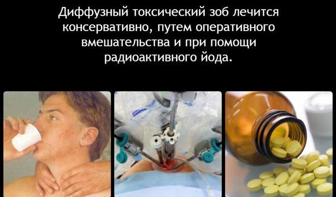 Лечение токсического зоба