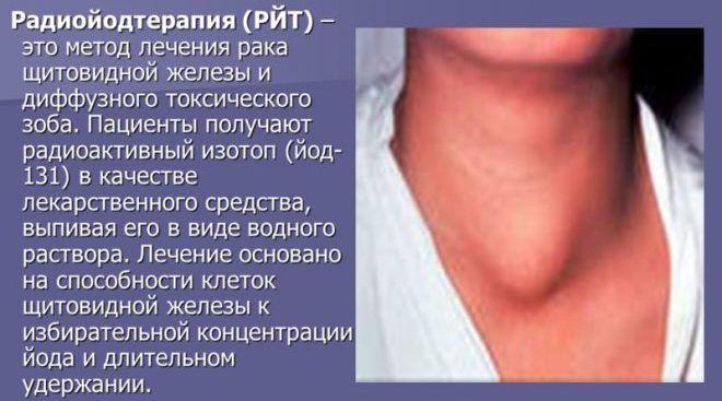 Лечение зоба щитовидной железы радиоактивным йодом