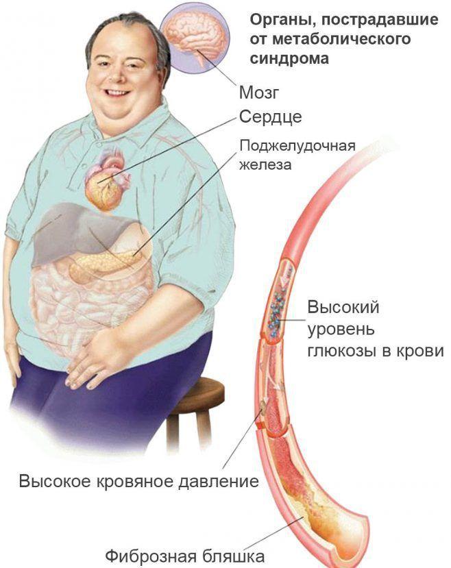 Метаболический синдром у мужчин