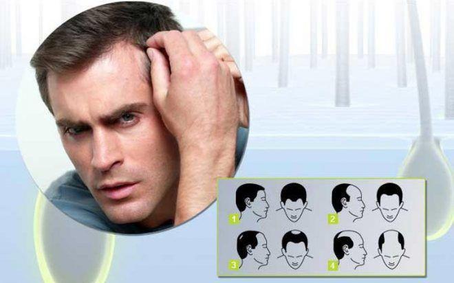На фото основные типы потери волос
