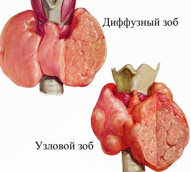 Наличие зоба щитовидной железы