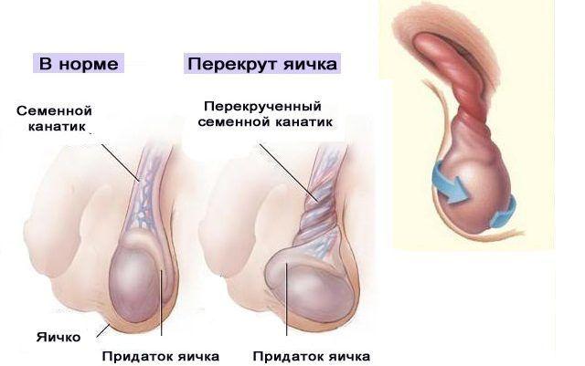 Нарушение нормального функционирования яичек