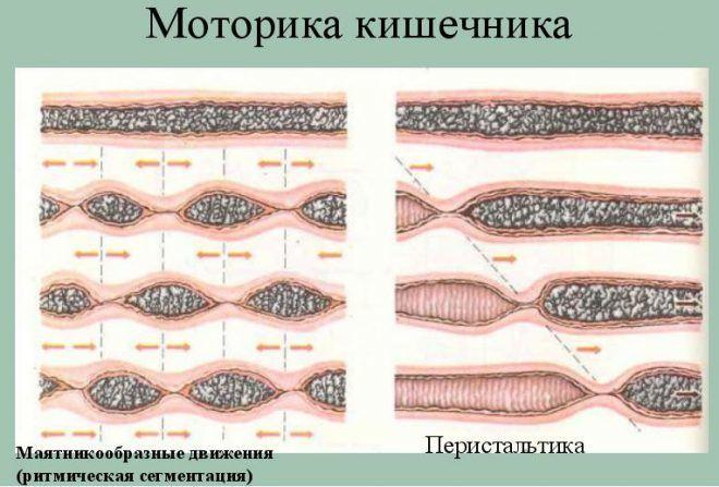 Нарушения моторики кишечника