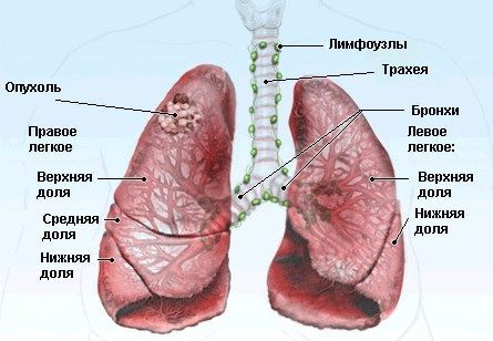 Опухоль в легких