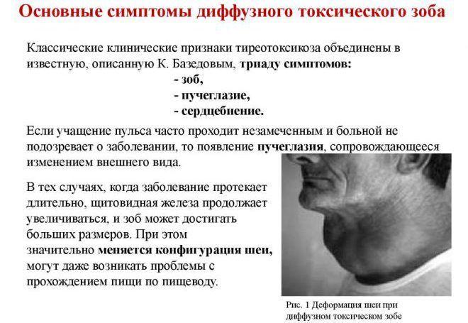 Основные симптомы диффузного токсического зоба