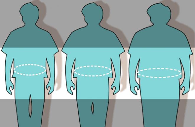 Ожирение по женскому типу