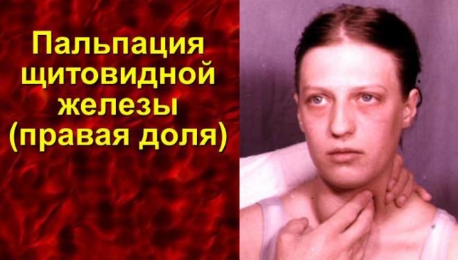 Кіста щитовидної залози у жінок - симптоми і лікування народними засобами » журнал здоров'я iHealth 5