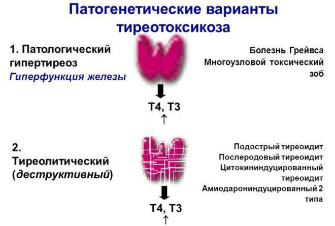 Патогенетические варианты тиреотоксикоза