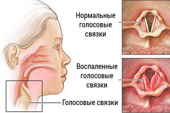 Перенапряжение голосовых связок