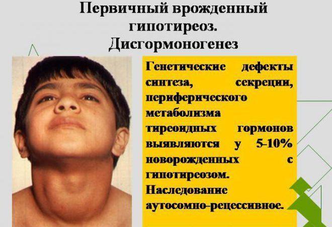 Первичный гипотиреоз у детей
