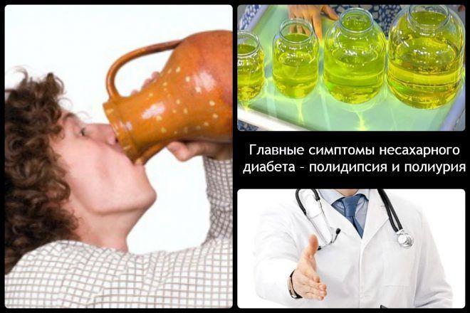 Полидипсия