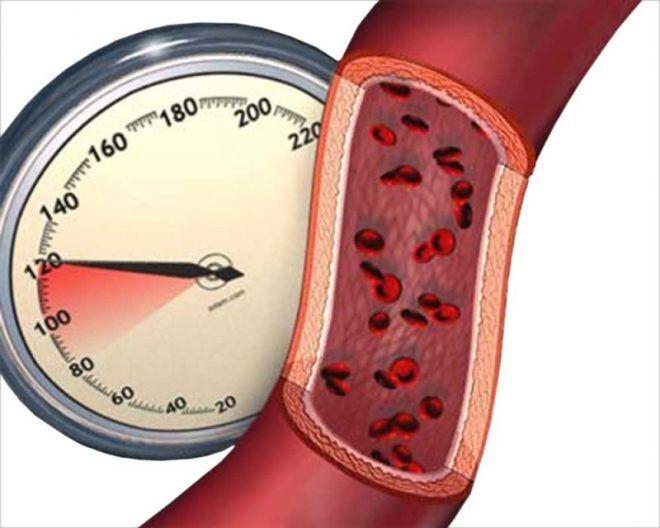 Повышению или снижению артериального давления