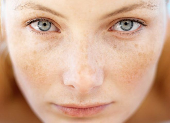Появление на коже пигментных пятен