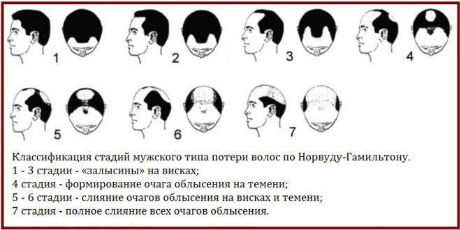 Причины мужского облысения