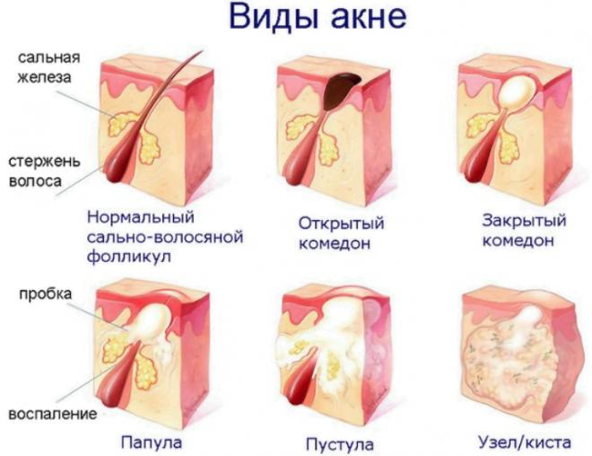 Причины появления сальных пробок