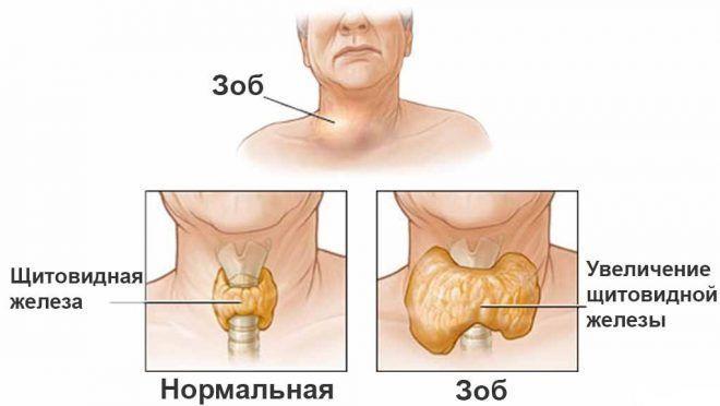 Пример увеличения щитовидной железы