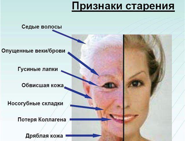 Признаки старения