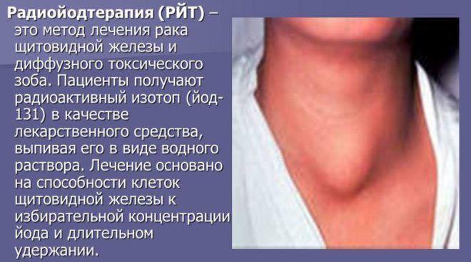 Вылечить щитовидку в домашних условиях