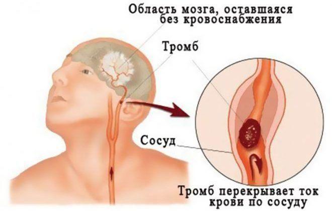 Различные нарушения мозгового кровообращения
