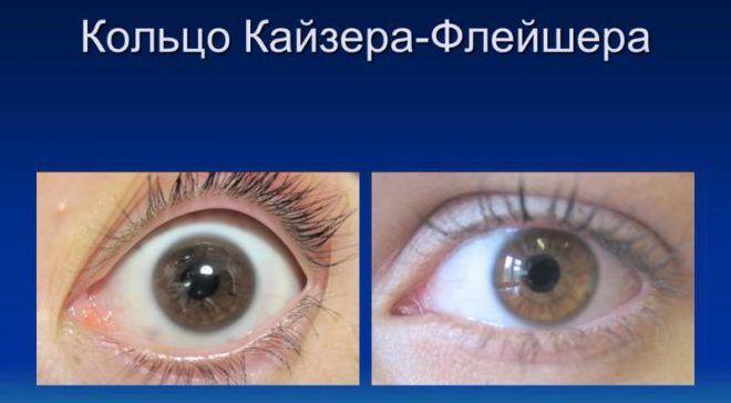 Симптом кольца Кайзера-Флейшера