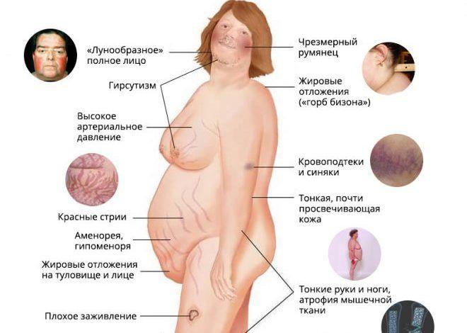 Симптомы гирсутизма у женщин