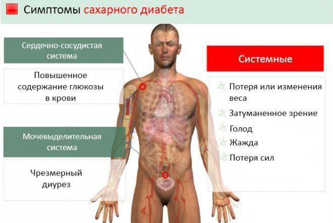 Список симптомов сахарного диабета