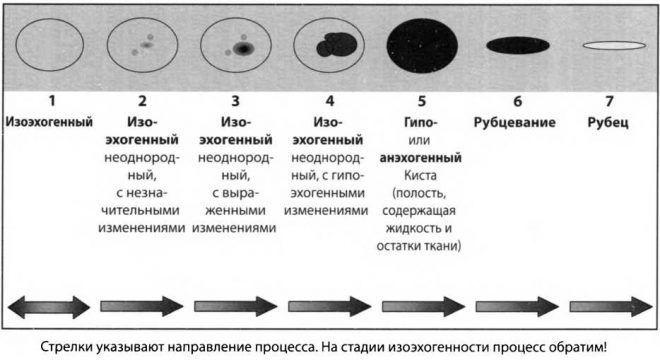 Стадийное изменение узлов щитовидки
