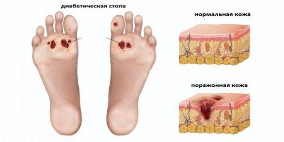 Стопа диабетика