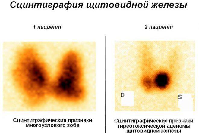Сцинтиграфия щитовидки