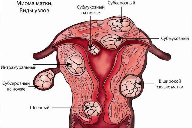 Субмукозная форма фибромиомы матки