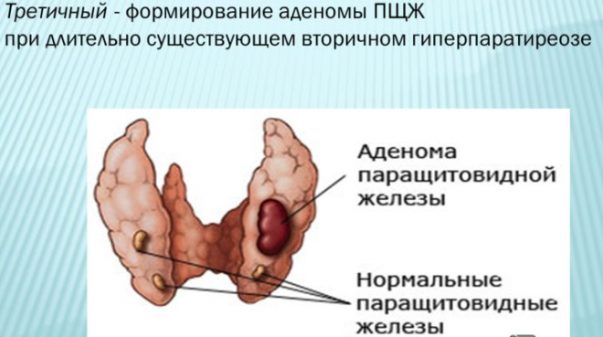 Третичный гиперпаратиреоз