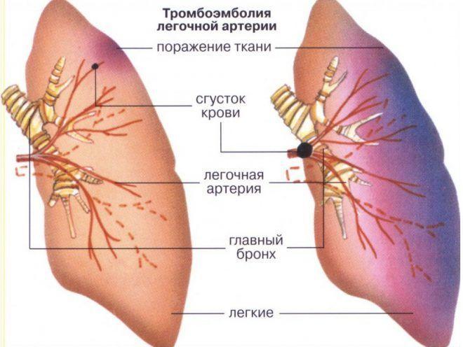 Тромбоэмболия может появится после приема прогестерона