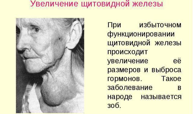 УЗИ щитовидной железы у женщин