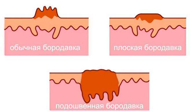 Увеличение количества бородавок