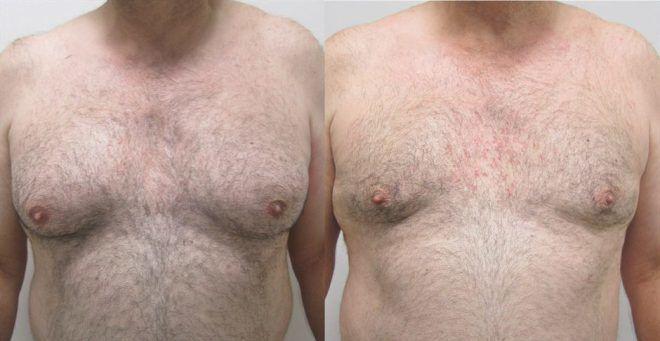 Увеличения груди у мужчин