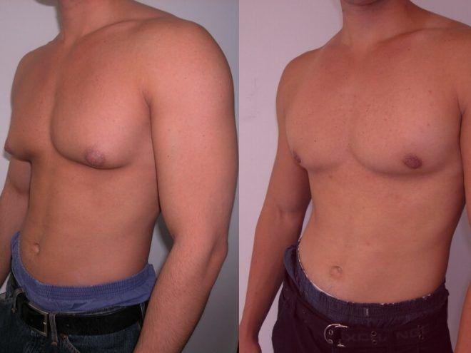 Увеличиваются грудные железы у мужчин