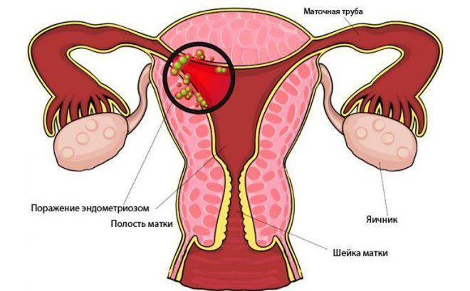 Виды и формы эндометриоза