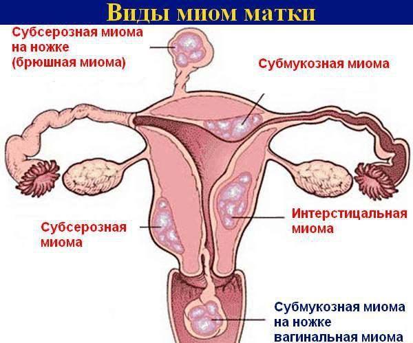 Миома матки при беременности
