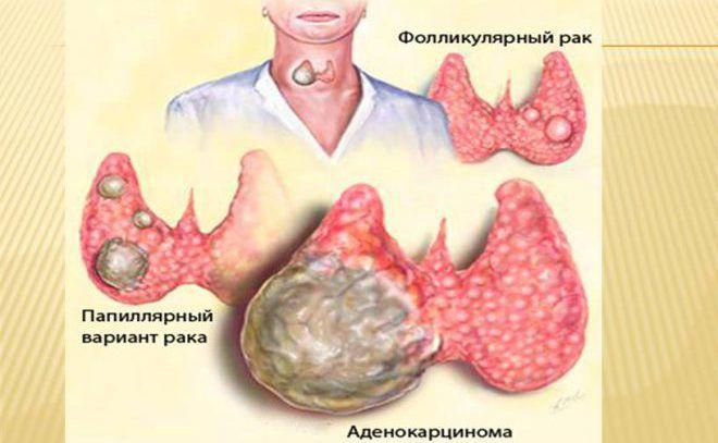 Виды рака щитовидной железы