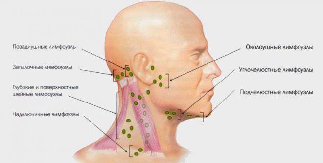 Почему воспаляется лимфоузел на шее у ребенка