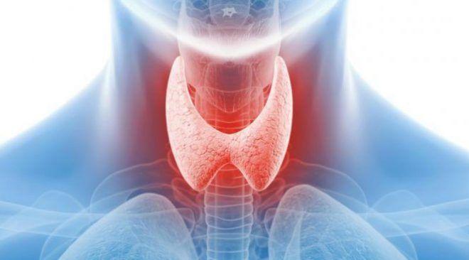 Запалення щитовидної залози - симптоми та ознаки у жінок, лікування » журнал здоров'я iHealth 8
