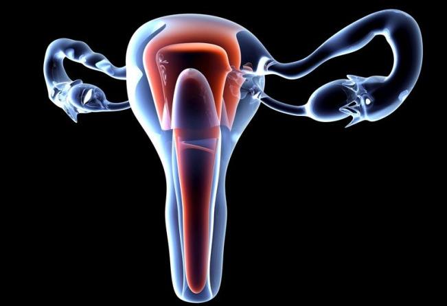 Врожденная деформация матки
