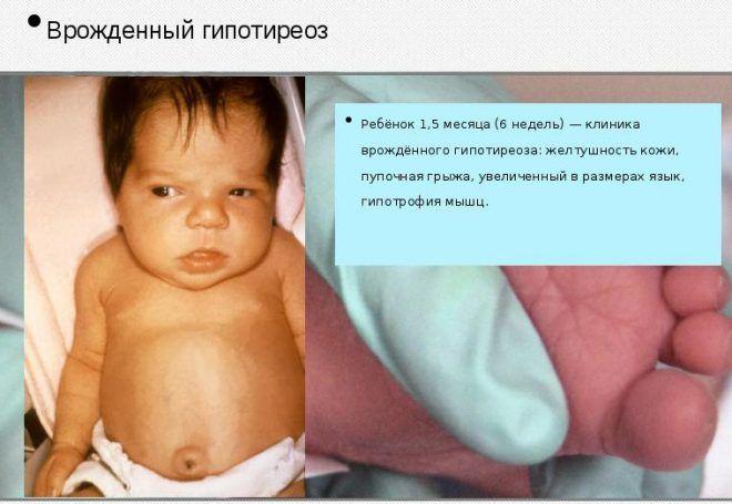 Сестринский уход за детьми с врожденным гипотиреозом