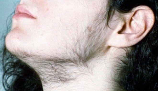 Женщина с характерными признаками гирсутизма