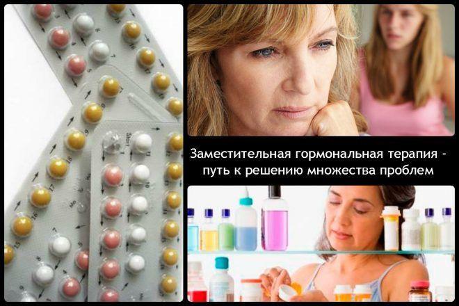 Заместительная гормональная терапия