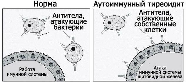 Аутоиммунный тиреоидит щитовидки